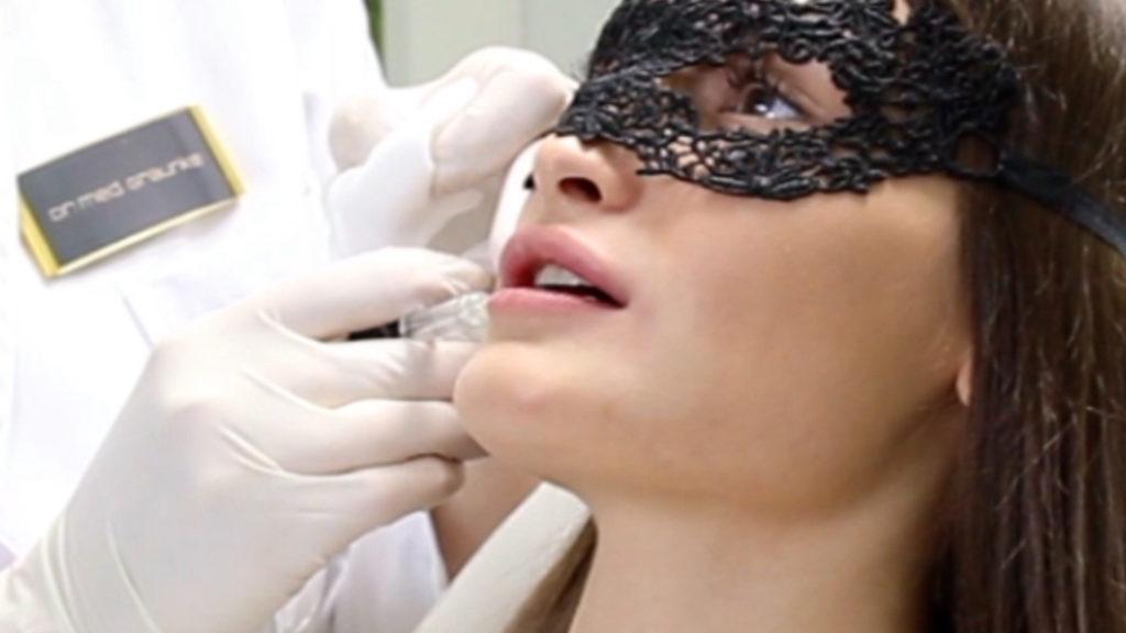 unterspritzung-hyaluron-lippe